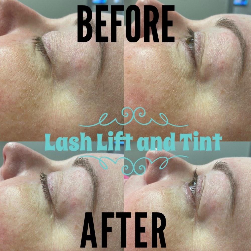 family dentist dixon family dental Morrilton AR Dixon Med Spa Lash lift and tint
